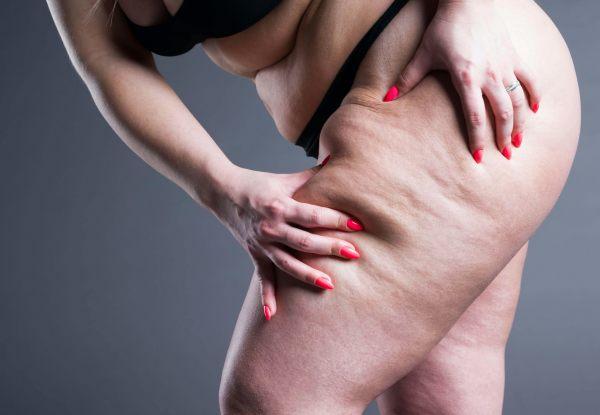 Jakie są przyczyny obrzęku lipidowego i co może pogarszać obrzęk?
