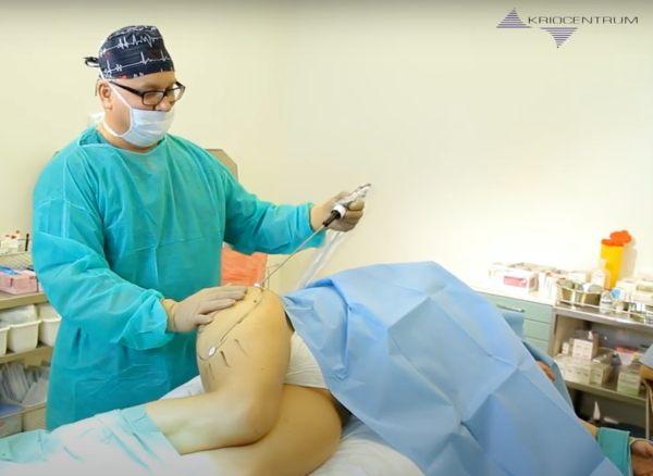 Leczenie obrzęku lipidowego – Operacyjne metody terapii